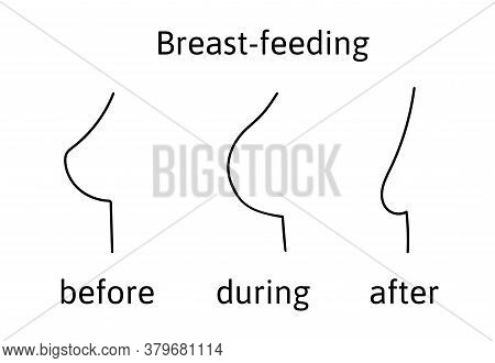 Female Breast During Breast Feeding Before It, Normal. Then It Changes To Large During Feeding. Afte