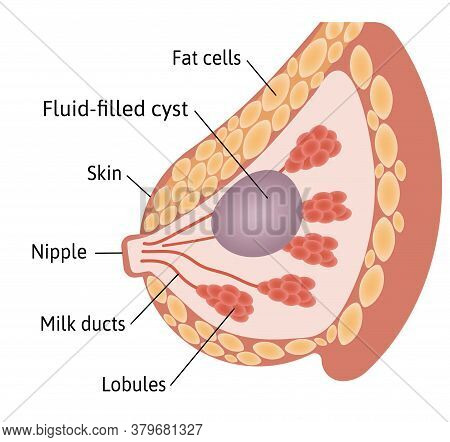 Cyst In The Female Breast. Large Fluid Filled Cyst Located Among Lobules. Medical Vector Illustratio