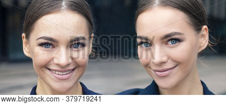 Comparison Portrait Of Beautiful Happy Woman With Problematic Skin. Two Photos Of Before And After S
