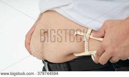 Close Up Of Fat Man Hands Measuring Overweight Belly By Using Body Fat Caliper