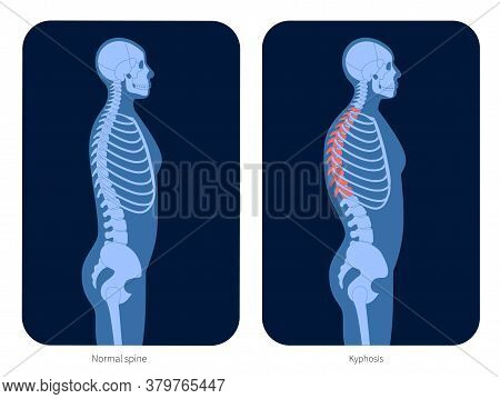 Normal Spine And Kyphosis In Human Body. Xray Flat Vector Illustration. Backbone And Skeleton Anatom