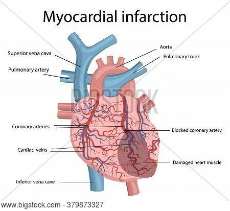 Vector Illustration Of Myocardial Infarction.  Human Heart Disease