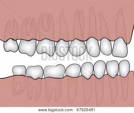 Figure jaw with teeth closeup made ??in vector graphics poster