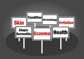 Eczema signs