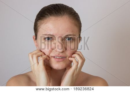 Beautiful young girl with acne on his face on a white background