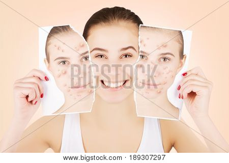 portrait of young brown eyed girl after procedures with healthy skin