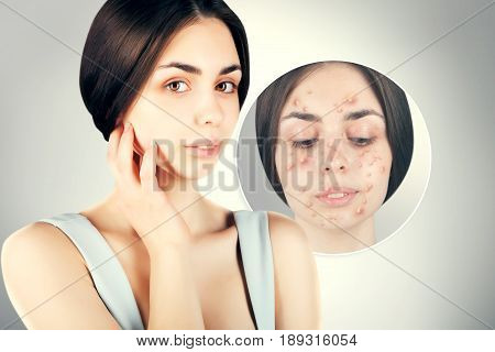 brunette woman fights with acne on her face