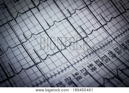 Holter electrocardiogram strip of a patient with pacemaker