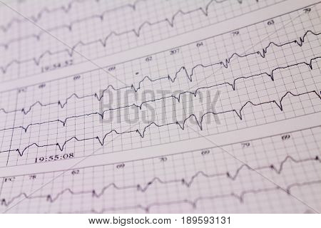 Three-channel holter electrocardiogram of a patient with cardiac pacemaker