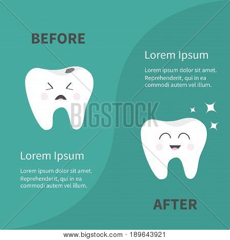 Before after Infographic Healthy smiling tooth icon. Shining star. Crying bad ill teeth with caries. Template with text. Cute character. Oral dental hygiene. Baby background. Flat design. Vector