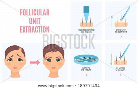 Female hair loss treatment with follicular unit extraction. Before and after effect. Stages of FUE procedure. Alopecia template for transplantation clinics and diagnostic centers. Vector illustration.