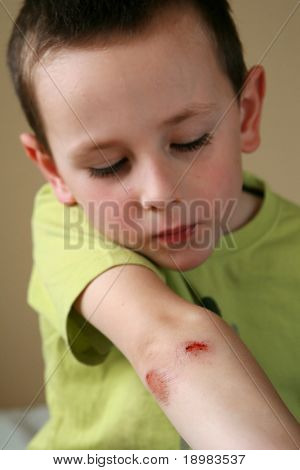 Boy holding his bleeding elbow. Young child with bloody scrape on arm.