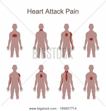 Heart attack pain location. Vector illustration flat design