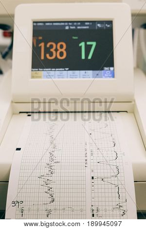 Fetal monitoring device in a hospital displaying chart of fetal cardiac activity.