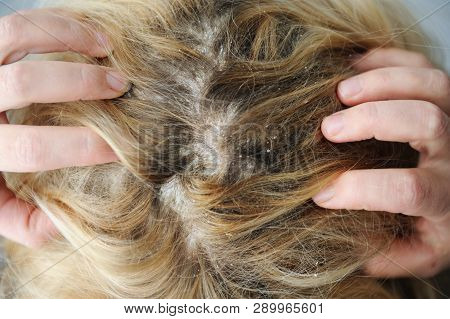 Dandruff seborrhea problem of scalp and hair treatment of peeling from allergies or lichen poster