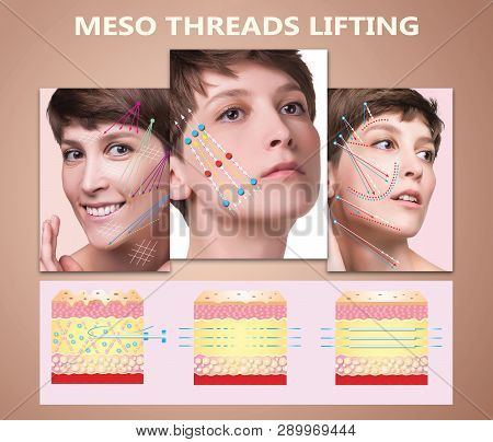 Meso thread Lift. Young female with clean fresh skin. Beautiful woman. face and neck. Lifting by threads concept poster