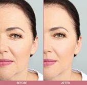 Mature woman before and after biorevitalization procedure, closeup. Cosmetic surgery poster