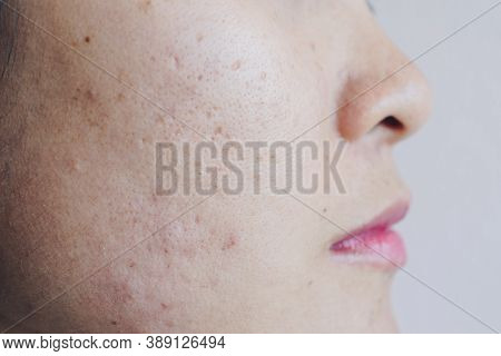 Close Up Of Asian Woman Face Has Problems With Aging Skin/acne Scar On Her Face. Problems With Acne