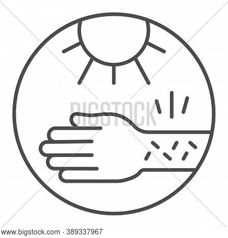 Hand With Irritate Skin And Sun Thin Line Icon, Allergy Concept, Allergy To Sunburn Sign On White Ba