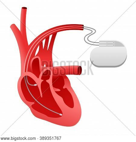 Pacemaker Cardio Stimulator Icon (heart Implant) - Medical Device Scheme And Human Heart In Sectiona