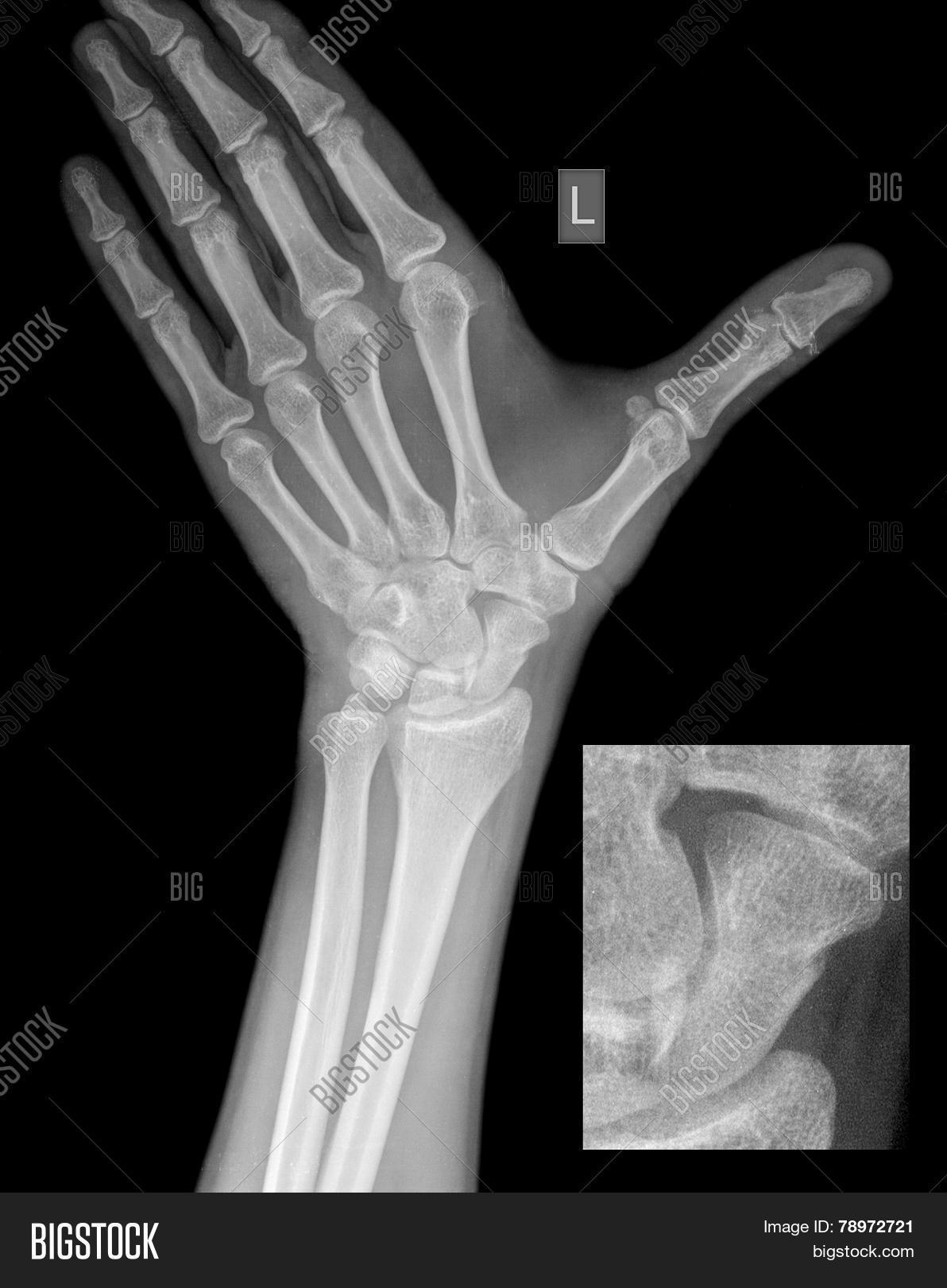 Hand Wrist X-ray, Image & Photo (Free Trial) | Bigstock