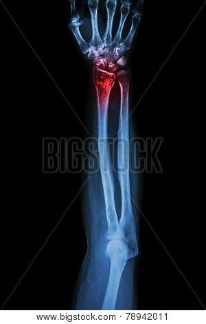 Fracture distal radius (wrist bone) (Colles' fracture)