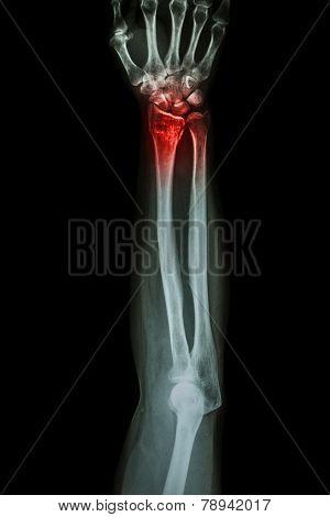 Fracture Distal Radius (wrist Bone) ,(colles' Fracture)