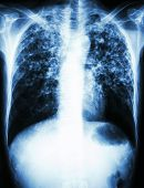 film chest x-ray show interstitial infiltrate both lung due to Mycobacterium tuberculosis infection (Pulmonary Tuberculosis) poster