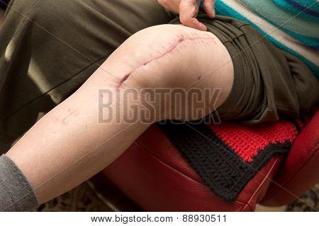 Senior Adult With Scar On Knee