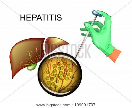 vector illustration of analysis for hepatitis C and liver disease