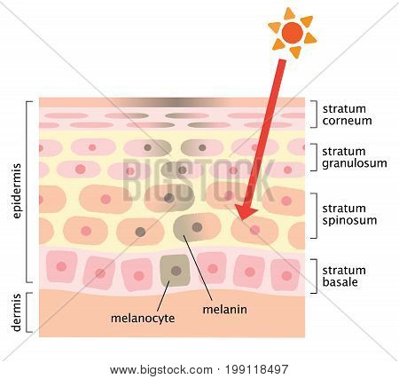 infographic skin illustration. facial blotches and skin mechanism