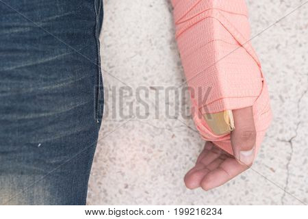 Patient's Arm were unite with cardboard and elastic bandage. Closed-up.