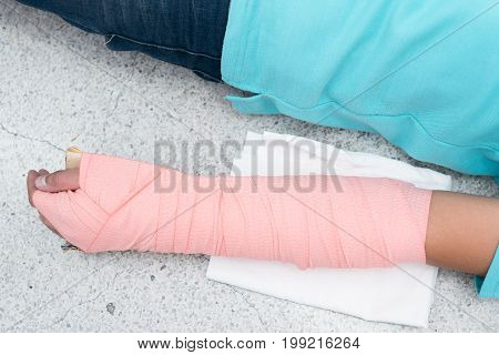 Patient's arm wrapped in an elastic bandage.