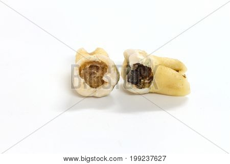 Decayed Tooth On White Background