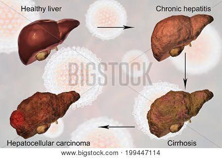 Liver disease progression in Hepatitis C virus infection, 3D illustration