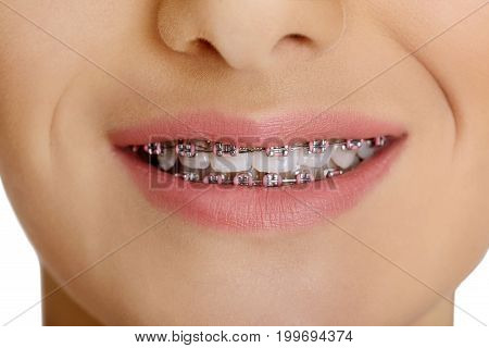 Portrait of teen girl showing dental braces in her mouth.