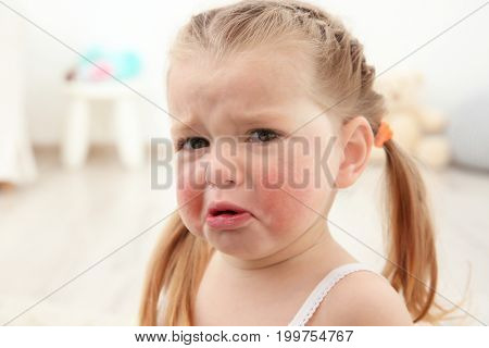 Portrait of little crying girl with diathesis symptoms in light room