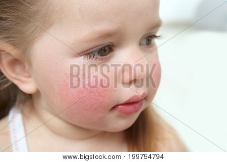 Portrait of little girl with diathesis symptoms on cheeks, closeup