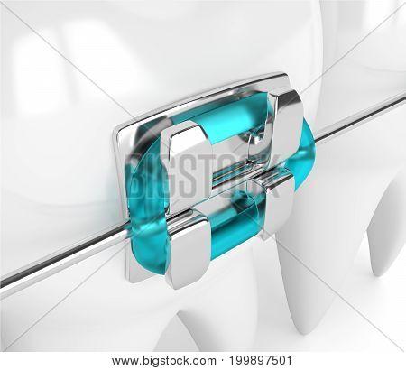 3D Render Of Teeth With Brace
