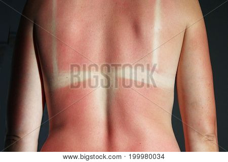 female back burnt after sunburn. Scald of the back by sun's beams