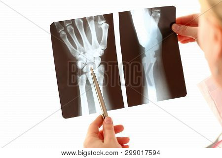 Doctor Female Hand Holding Hand Xray Photography. Radiologist Check Bone Trauma On White Background.