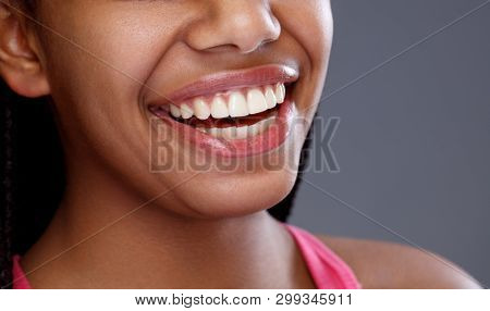 Close up of woman's smile with perfect straight and white teeth, concept