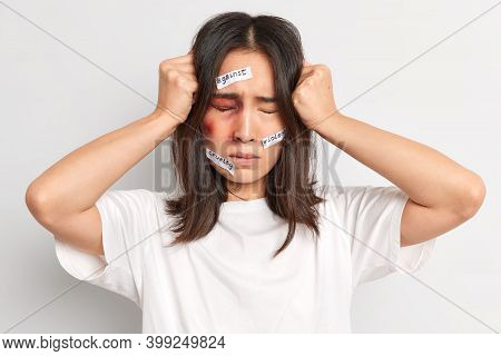 Frustrated Brunette Young Woman Suffers Severe Headache Becomes Victim Of Domestic Violence Being Ab