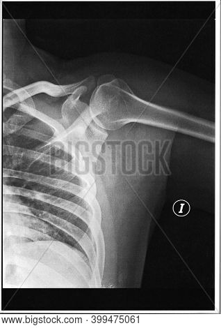 Shoulder X Ray Examination Test In Black And White