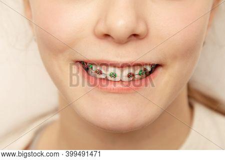 Closeup Multicolored Braces On Teeth. Beautiful Female Smile With Self-ligating Braces. Orthodontic