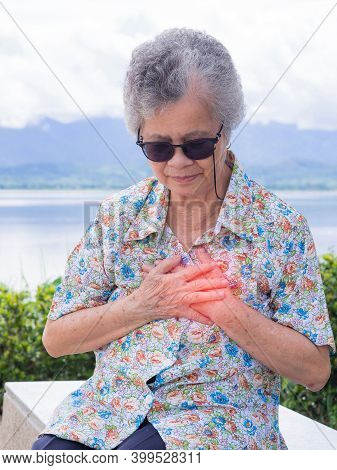 A Senior Woman Clutching Her Chest In Pain At The Signs Of Angina Or Myocardial Infarction Or Heart