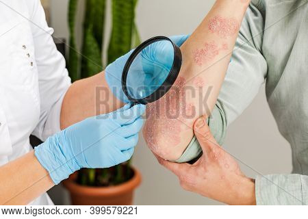 A Dermatologist Wearing Gloves Examines The Skin Of A Sick Patient. Examination And Diagnosis Of Ski