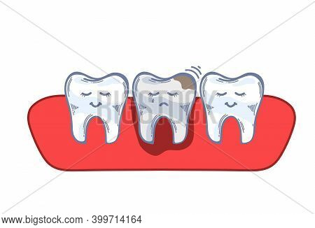 Teeth In The Gum, Caries, Damaged Tooth, Toothache. Hand Drawing. Editable Vector Illustration In Mo