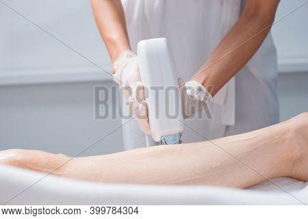 Laser Depilation Or Photoepilator Process On A Woman Leg.