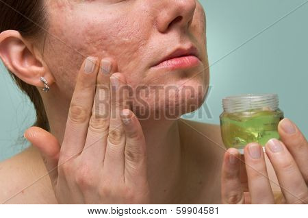 Girl applying aloe gel to problematic skin with acne scars poster